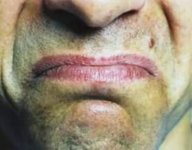 Що означає присмак у роті? фото