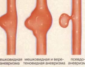 Що таке аневризма? фото