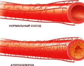 Що таке атеросклероз? фото