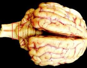 Що таке енцефалопатія? фото