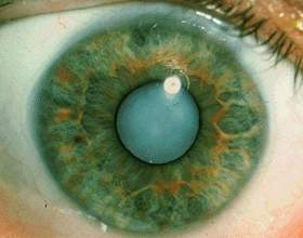 Що таке катаракта? фото