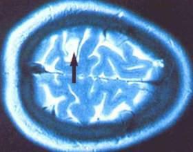 Що таке кіста мозку? фото