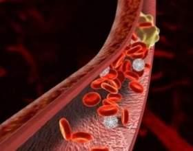 Що таке тромбоз? фото