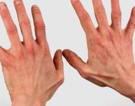 Дієта при дерматиті фото