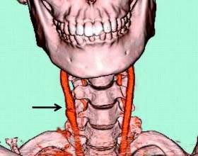 Де знаходиться сонна артерія? фото