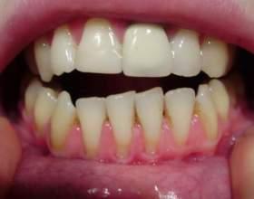 Як виправити зуби? фото