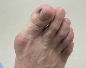Як позбутися від кісточок на ногах? фото