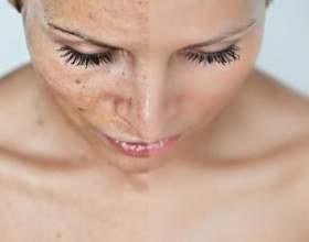 Як позбутися від пігментних плям на обличчі? фото