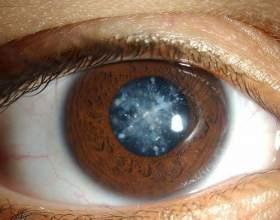 Як лікувати катаракту? фото