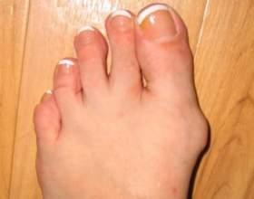 Як лікувати шишки на ногах? фото