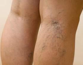 Як лікувати вени на ногах? фото