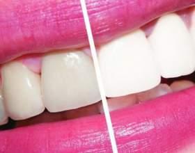 Як відбілити зуби без шкоди? фото