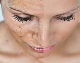 Як прибрати плями на обличчі? фото