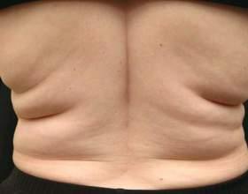 Як прибрати жир зі спини? фото