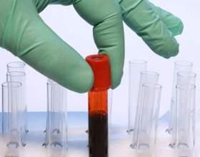 Як дізнатися групу крові? фото