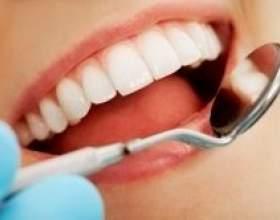 Як вибрати метод відбілювання зубів фото