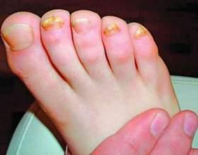 Як вилікувати пальці на ногах? фото
