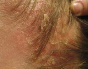 Як вилікувати себорейний дерматит? фото