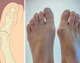 Кісточки на ногах, як позбутися? фото