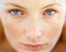 Від чого плями на обличчі? фото