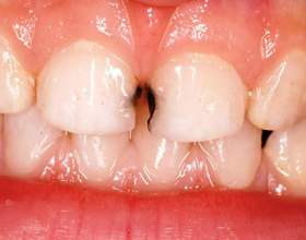 Чому чорніють зуби? фото