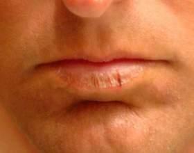 Чому сохнуть губи? фото