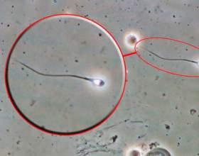 Скільки живе сперматозоїд? фото