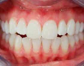 Скільки зубів у людини? фото